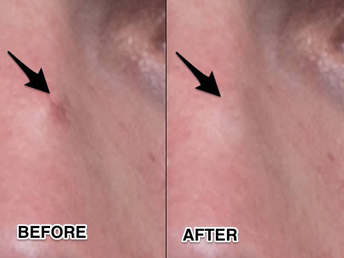 Before and after healing